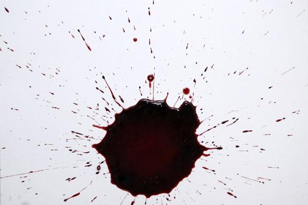 Bloodstain Example - Bloodstain