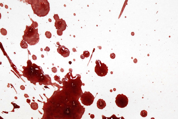 Bloodstain Example - Expiration Pattern