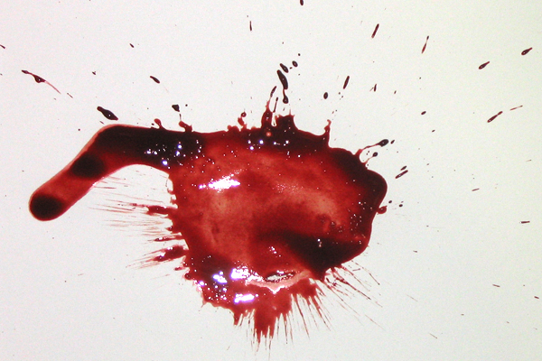 Bloodstain Example - Low Velocity Impact Spatter (LVIS)